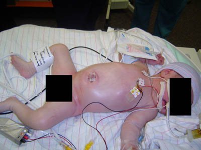 Gastroschisis-Primary-Closure