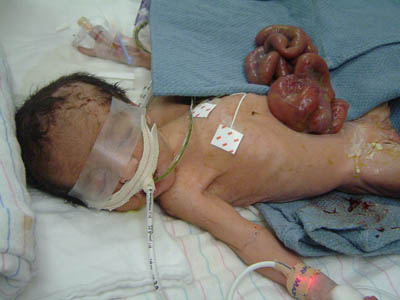 Gastroschisis-Typical-1