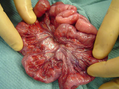 Intestinal-Hemangioma-June-2006-007