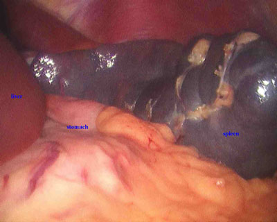 Laparoscopic-view-of-spleen-during-splenectomy