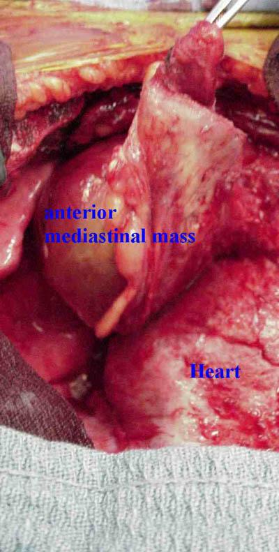 Mediastinal-teratoma