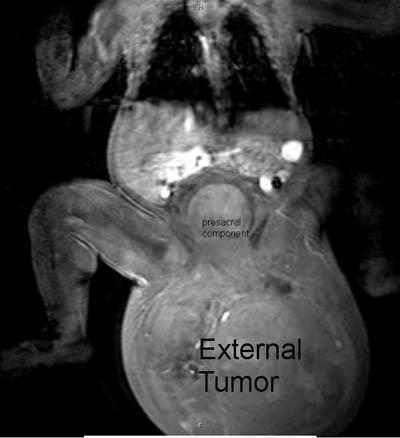 SCT-MRI