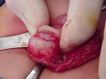 pyloromyotomy2